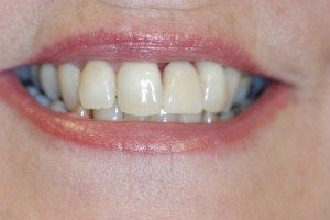 Replacement of a single tooth with Dental