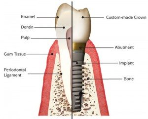 dental implants a diagram of tooth and implant anatomy