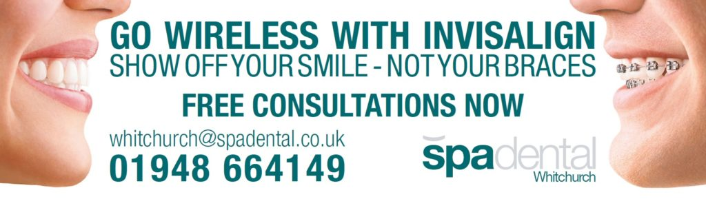 treatments at SpaDental Whitchurch Invisalign free consultations