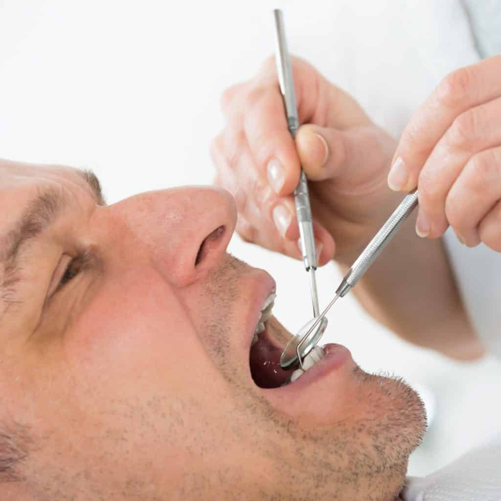 man having White Fillings
