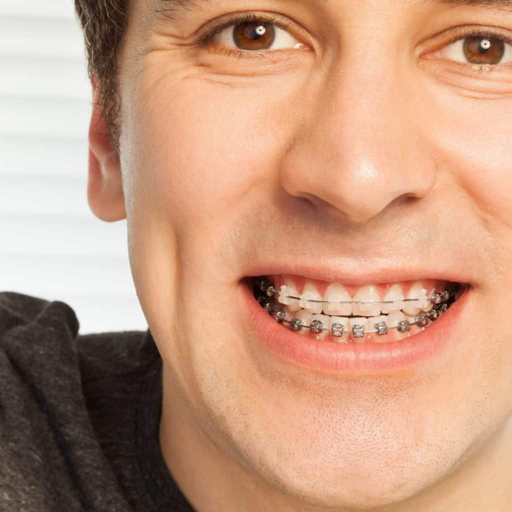 Orthodontic consultation for a young man with braces