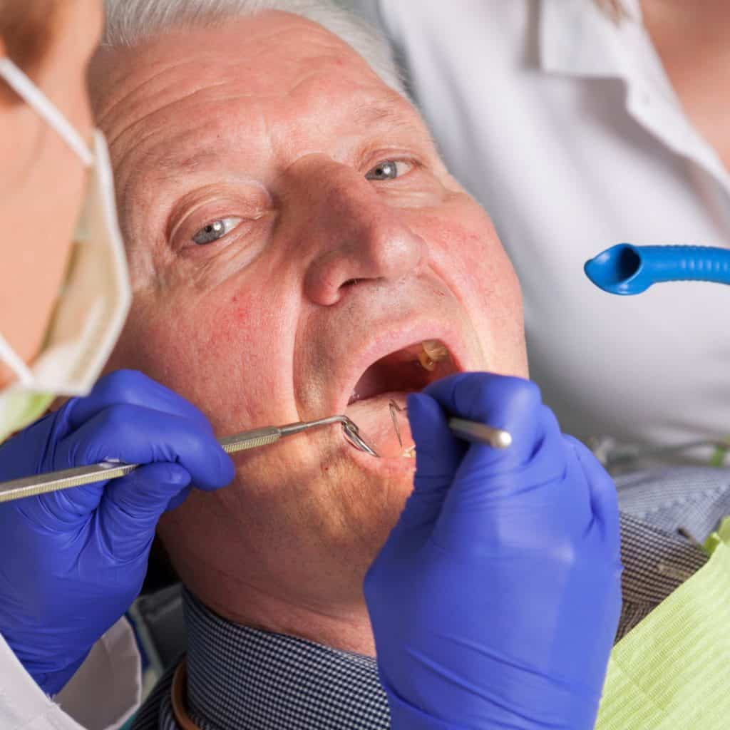 man having gum cleaned periodontics