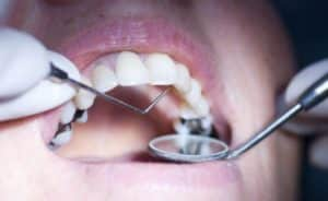 what's in an amalgam filling - a dental inspection