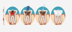 abscess in my mouth treated according to this diagram of four stages of endodontic treatment